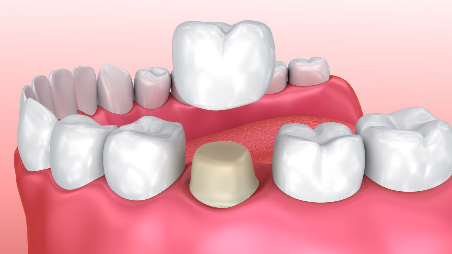 Drawing of a dental crown in Forest Hill, TX, being placed over a shaved down molar